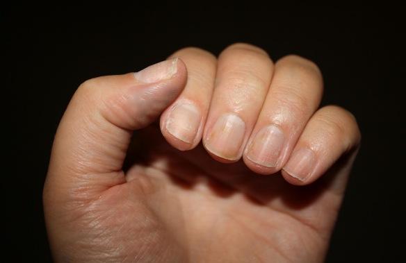 bad natural nails
