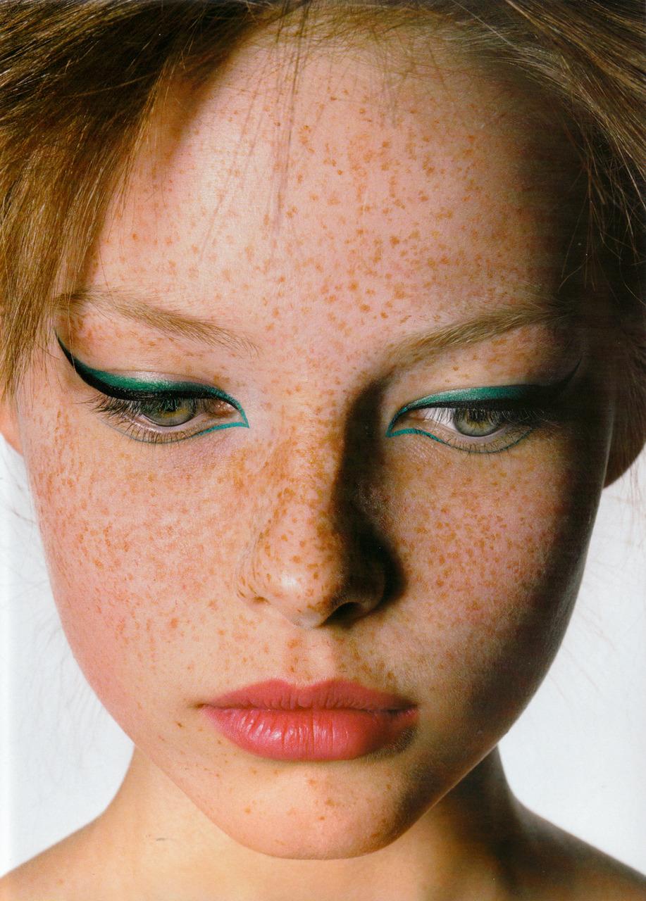 Freckles Freshfood